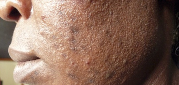 Steroid induced acne with hyperpigmentation